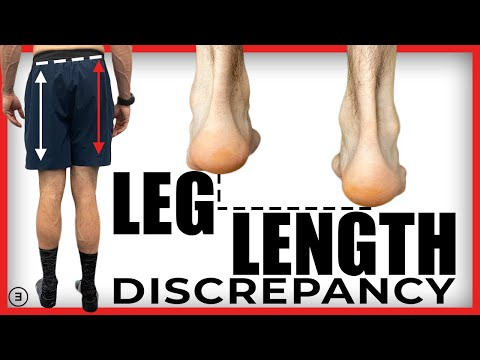 Leg Length Discrepancy: What is it? How much matters? What to do about it?