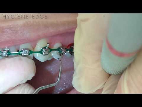 Hand Instrumentation Demonstration on Orthodontics