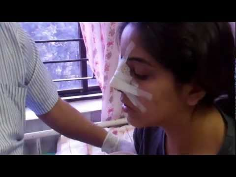Day 2 - Pack Removal - Rhinoplasty In India - Dr Paulose FRCS (ENT)