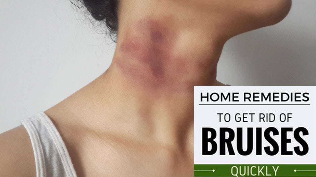 how to heal bruises naturally with home remedies |proven home