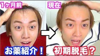 【ハゲ日記】AGA薄毛治療1ヶ月目!