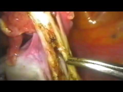 Киста правого яичника эндометриоидная: симптомы и лечение