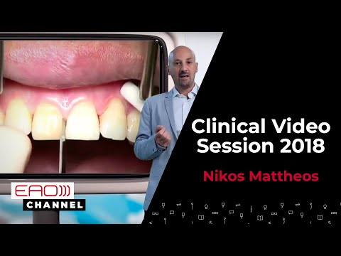 EAO European Clinical   Session Contest – Nikos Mattheos