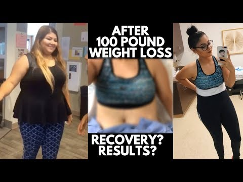 TUMMY TUCK WITH MICRO BODY CONTOURING// EXPERIENCE & RESULTS PART 1