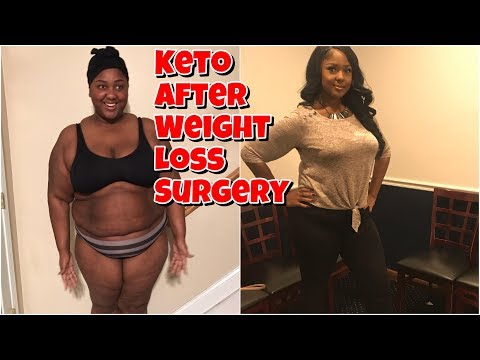 KETO AFTER WEIGHT LOSS SURGERY? LET ME EXPLAIN IT ALL!