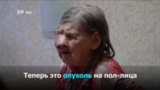 Опухоль на пол-лица мешает жить пенсионерке