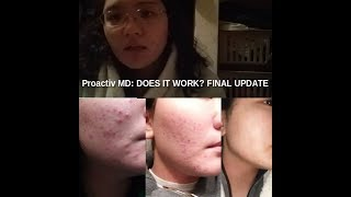 Proactiv MD: Does it Work? Final Update