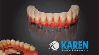 KAREN Dental Laboratory (Зуботехническая лаборатория KAREN)(Открывая в 1993 году свою тогда еще маленькую зуботехническую лабораторию, будучи уже известным специалисто..., 2014-01-31T07:49:02.000Z)