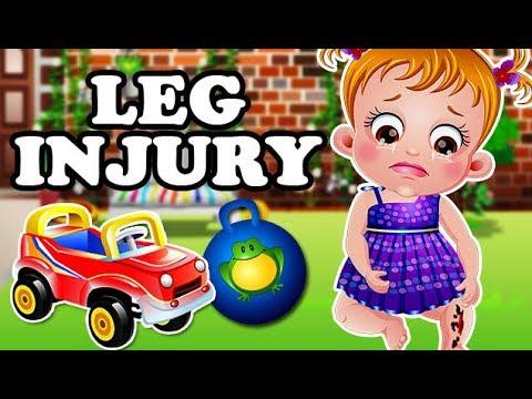 Baby Hazel Leg Injury | Fun Game Videos By Baby Hazel Games