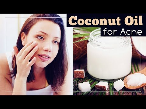 coconut-oil-for-acne:-face-mask-recipe