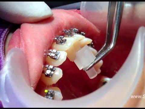 จัดฟัน เครื่องมือยกความสูงฟันคนจัดฟัน ( How to Put Bite Turbos with Braces )