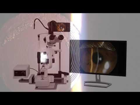 FB Eye Equipments Presenta - Remidio AIM, Sistema De Video Para Lampara De Hendidura.