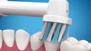 Орал бі про 700 характеристики Електрична зубна щітка
