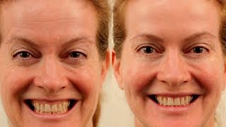Just Rub Your Skin with THIS Spice and The Wrinkles Will Disappear! ✓