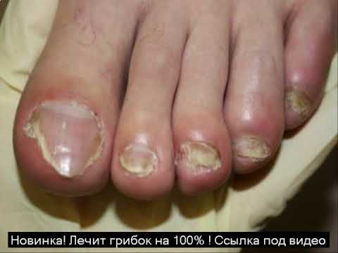 бифосин от грибка ногтей отзывы цена