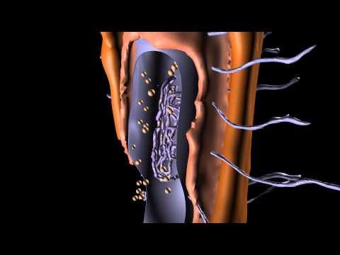 Prokaryotic Cell Structure (Bacterium)