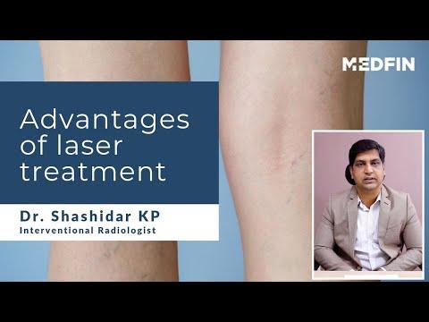 advantages-of-laser-treatment-for-varicose-veins-|-evlt