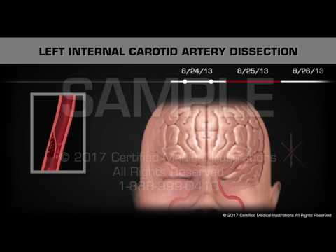Carotid Artery Dissection Animated Timeline