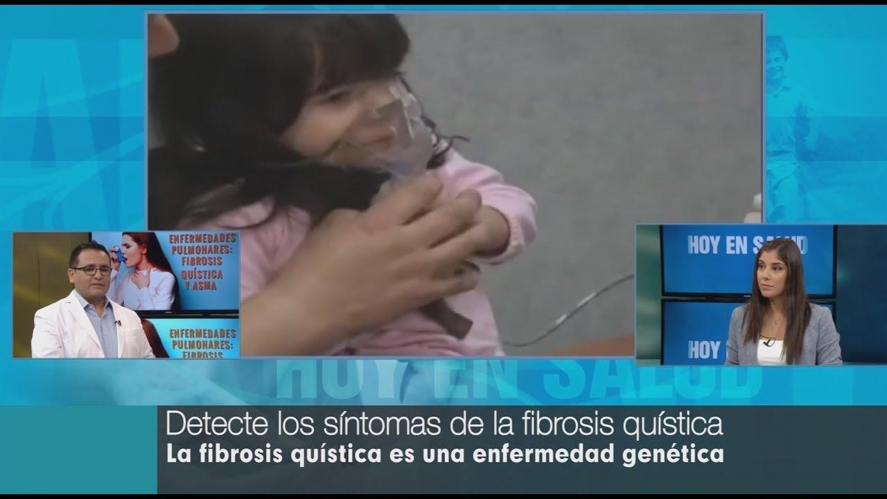 cuales son los sintomas de la fibrosis quistica pulmonar