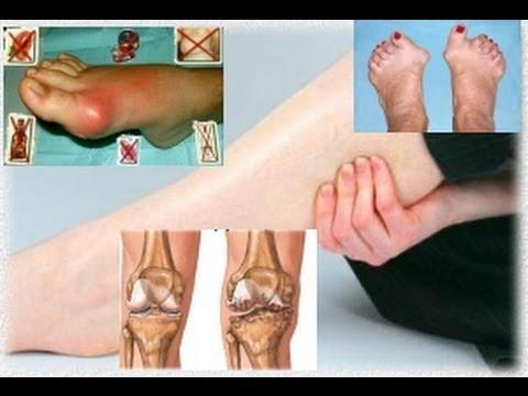 Остеоартроз - симптомы болезни, профилактика и лечение