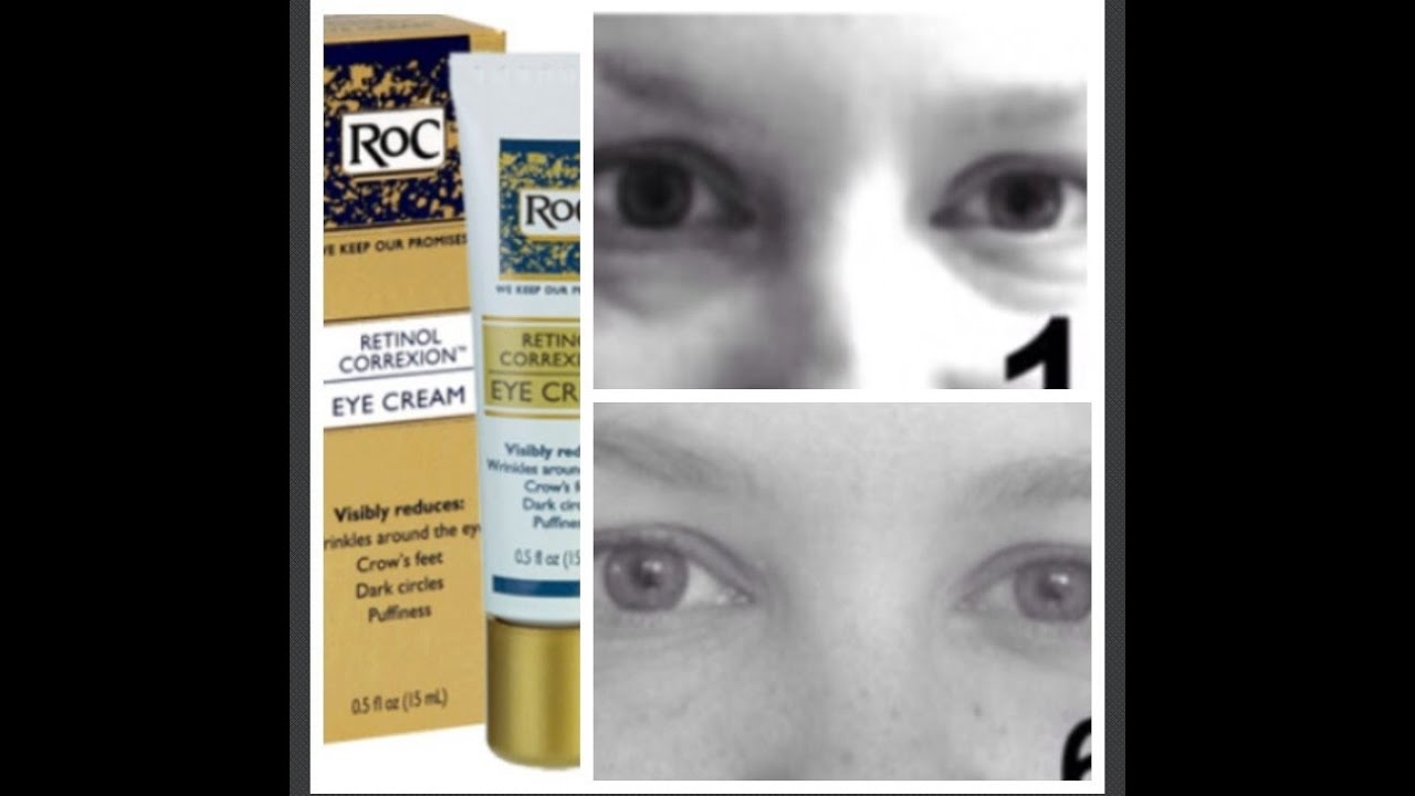 The Roc Eye Cream Review 6 Week Study Youtube