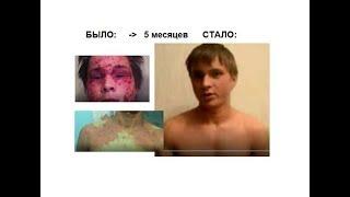 Сергей Смирнов Нейродермит - сейчас чистая кожа