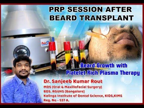 PRP (Platelet-rich plasma) After Beard Transplant // Dr. Sanjeeb Rout // Balaji skin and hair