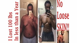 Safely lose 100 lbs in less than a year with NO Loose SKIN