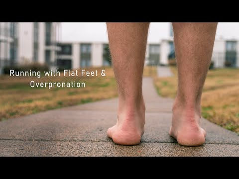 running-with-flat-feet-and-overpronation