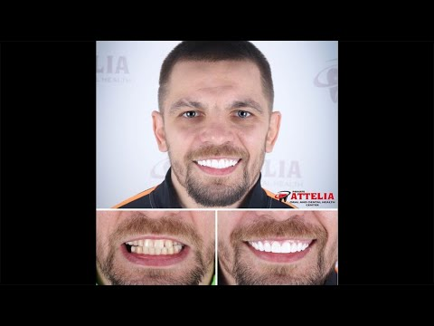 Ivan Redkach (Professional boxer) | Attelia Dental Turkey