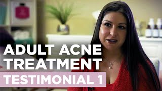 Envision Acne & Skin Care Center | New Jersey Acne Treatment Center Testimonial 1