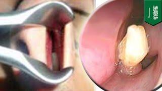 У жителя Саудовской Аравии в носу вырос зуб