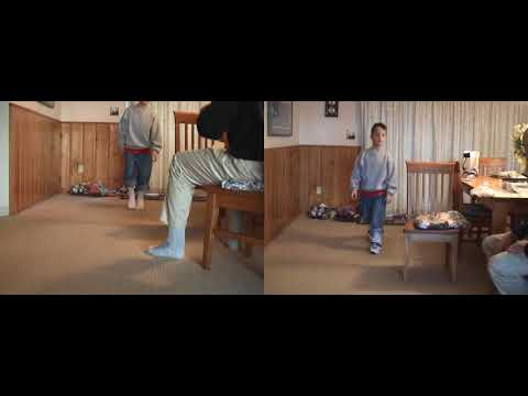 Before & After: Excess Plantarflexion - Toe Walking | DAFO 2