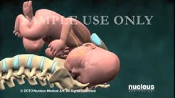 Nucleus Obstetrics and Gynecology Demo (2010)