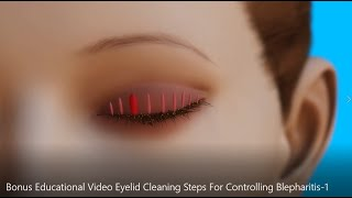 AAO Eyelid Cleaning Steps For Controlling Blepharitis