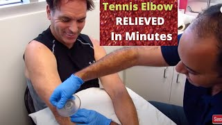 5+ Months of Tennis Elbow Pain Relieved In No Time (THIS WORKS!!)