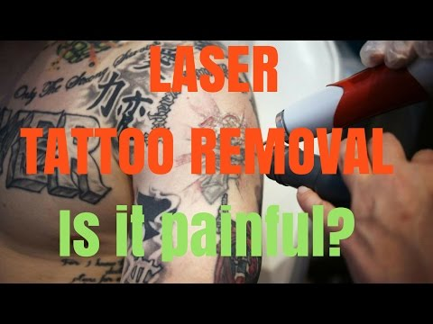 Laser Tattoo Removal- The truth.