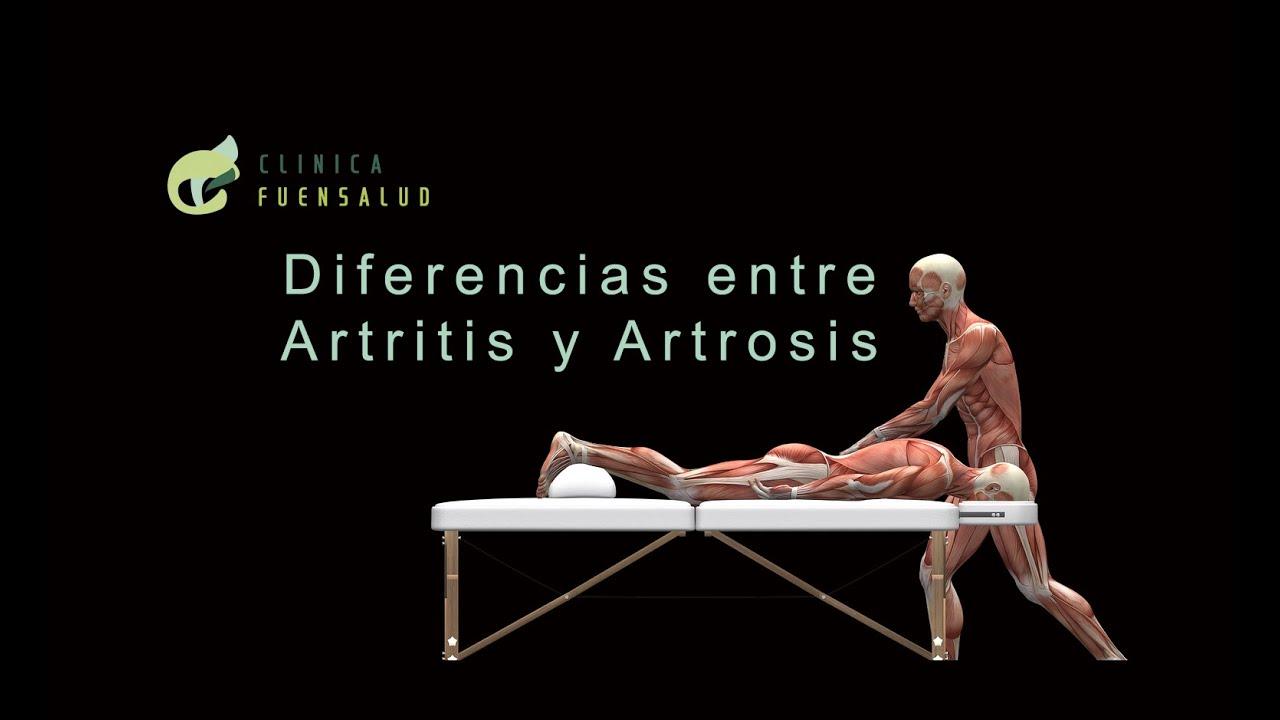 mi a deformáló artrosis a csípőízület)