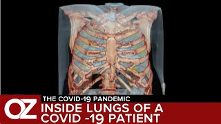 Inside The Lungs Of A Covid-19 Patient Days After He Had No Symptoms