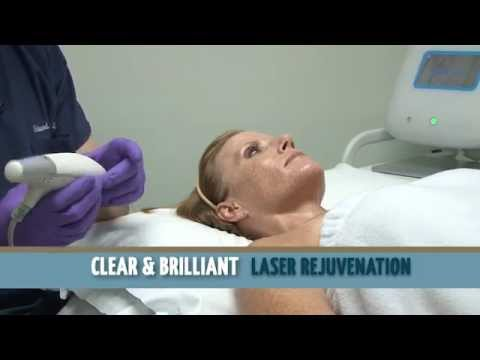 Clear + Brilliant Fractional Laser in Charlotte, NC