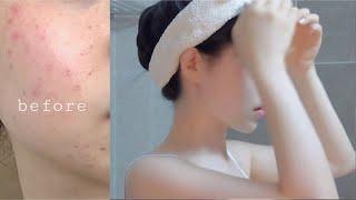 🧴셀프 홈케어로 트러블 피부 끝내버렸다,,🧴뒤집어진 피부 되돌리기 , 피부 셀프관리