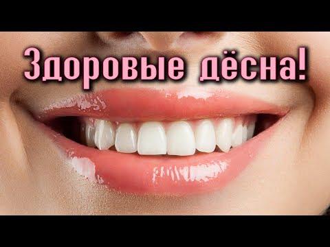 ПРОФИЛАКТИКА И ЛЕЧЕНИЕ ДЁСЕН (парадонтоз, гингивит, воспаления...)