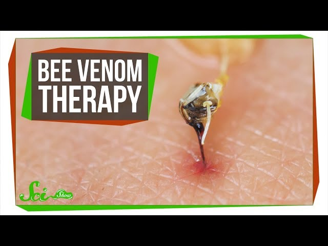 The Problem with Bee Venom Therapy