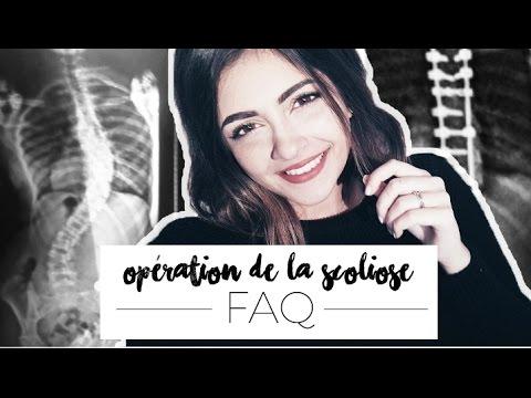 FAQ - OPÉRATION DE LA SCOLIOSE