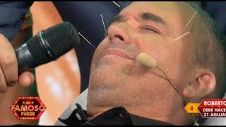Gambar cover Los famosos tuvieron que aguantar muchas agujas en sus caras - Mi famoso puede