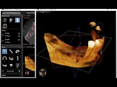 cs 3d imaging software for implant planning