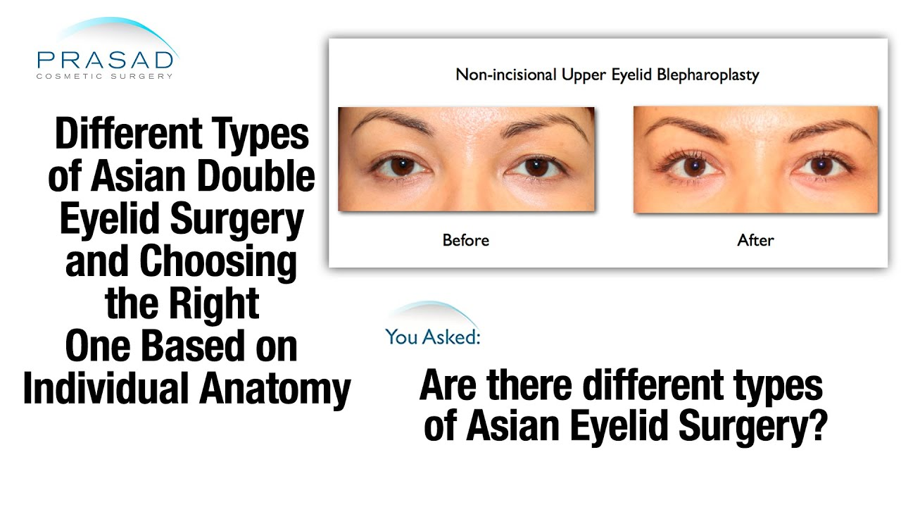 Determining Most Appropriate Type of Asian Double Eyelid Surgery ...