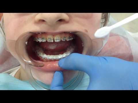 Вопрос: Как чистить зубы со скобами?