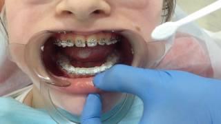 Как чистить зубы с брекетами?(, 2016-12-12T10:23:46.000Z)