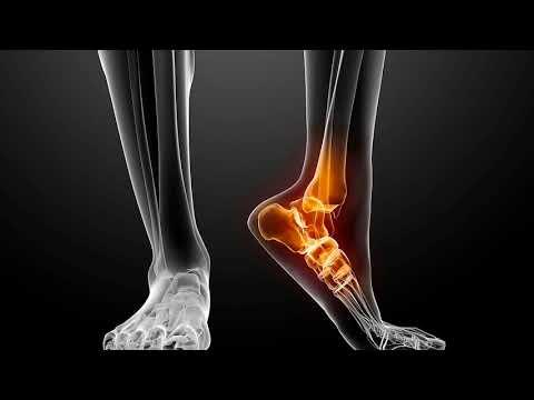 Болит пяточная кость лечение